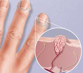 Бородавка на руке лечение народными средствами