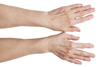 Артрит рук. Узлы Гебердена